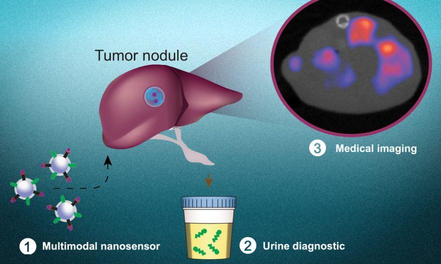 new non-invasive technique to detect Cancer